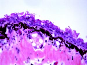 Section histologique de peau d'amphibien atteint de chytridiomycose, maladie à l'origine du déclin de nombreuses espèces d'amphibiens.